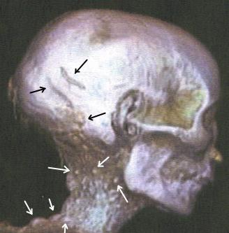 Mummy of Thutmose II'