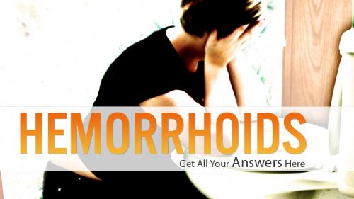 Cure External Hemorrhoids'