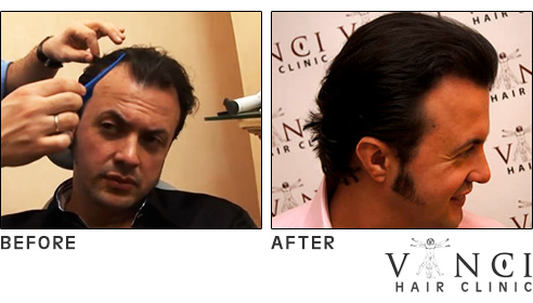 hair transplants'