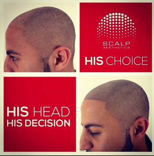 his head his choice'