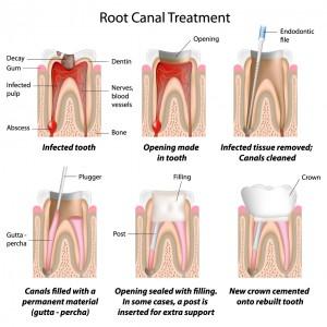 dentist san clemente'