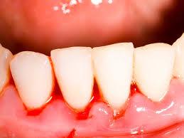 Bleeding gums'