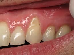 Receding gums'