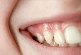 healthy gums'