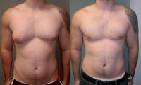 Gynecomaguide