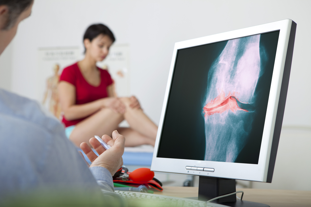 Osteoarthritis Clinical Research