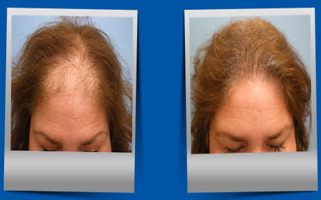 The Rebuild Hair Program For Hair Loss Regrow