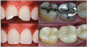dental implants'