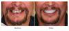Dental Implant (Before & After)'