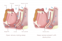 Obstruction sleep apnea