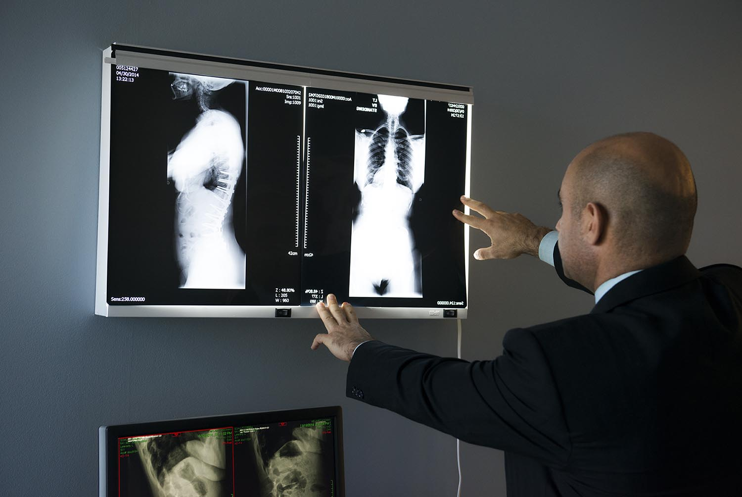 Scoliosis Surgery Los Angeles Offered by Top Spine Surgeon