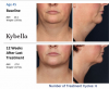 Kybella Before and After'