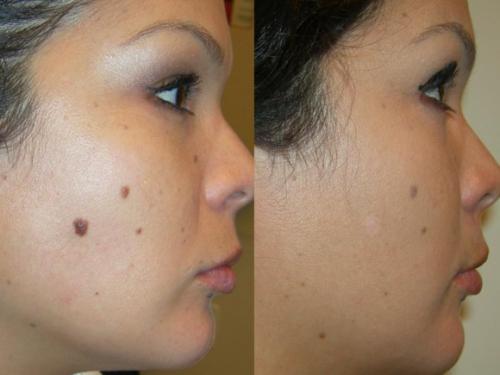 mole removal'