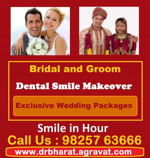 Bride_and_Groom_Dental_Smile_Makeover_Wedding_Packages_Ahmed'
