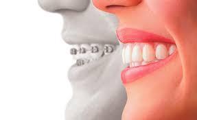 dental braces'