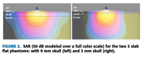 Brain models'